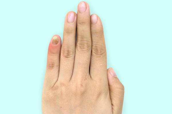 Cómo se toma el fluconazol para hongos en las uñas