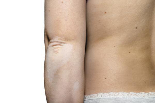Manchas blancas en los brazos: causas, tratamiento y remedios