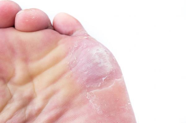 Por qué se pelan los pies