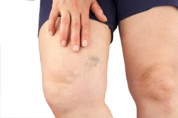 Pesadez en las piernas: causas y remedios caseros - Pesadez en las piernas: causas
