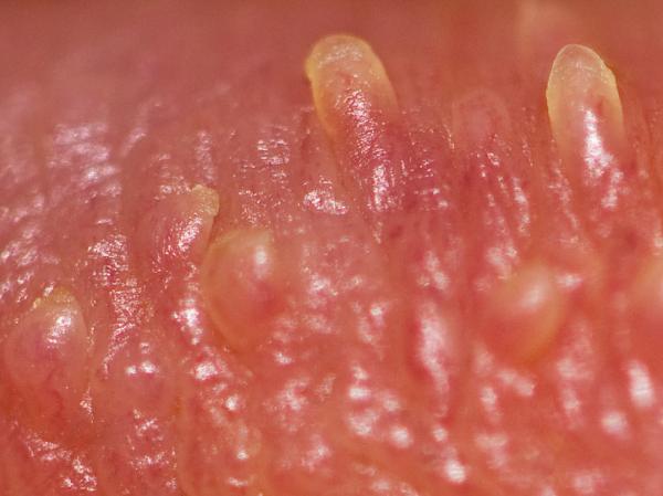 Pápulas perladas en el glande: causas y tratamiento - ¿Qué son las pápulas perladas en el pene?