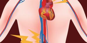 Aneurisma de aorta abdominal: síntomas y tratamiento
