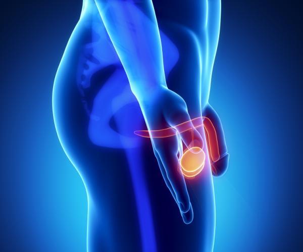 Por qué me duelen los testículos después de tener relaciones - Dolor de testículos por torsión testicular