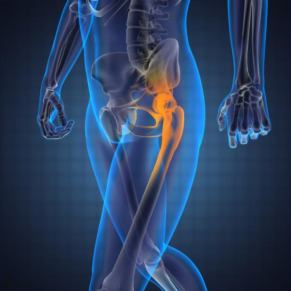 Remedios caseros para el dolor de cadera