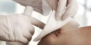 Herida que no cierra y supura: ¿qué hacer?
