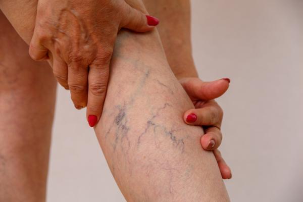 ¿Es normal que se vean las venas en las piernas? - Cuándo no es normal ver venas en las piernas