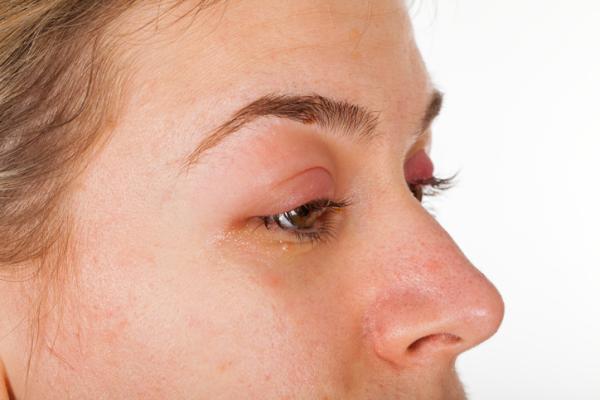 Chalazión: qué es, causas, síntomas y tratamiento - Causas de chalazión