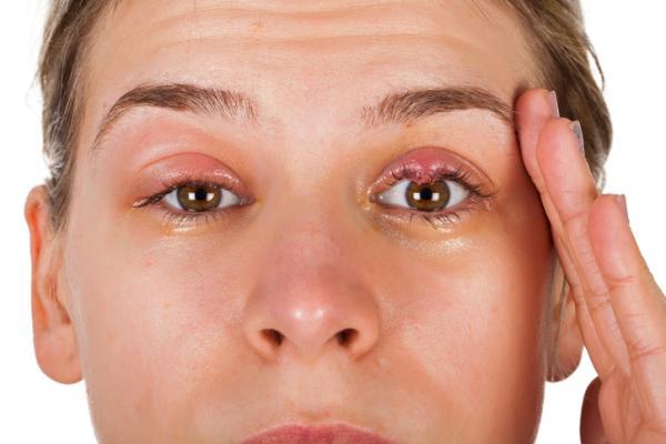 Chalazión: qué es, causas, síntomas y tratamiento