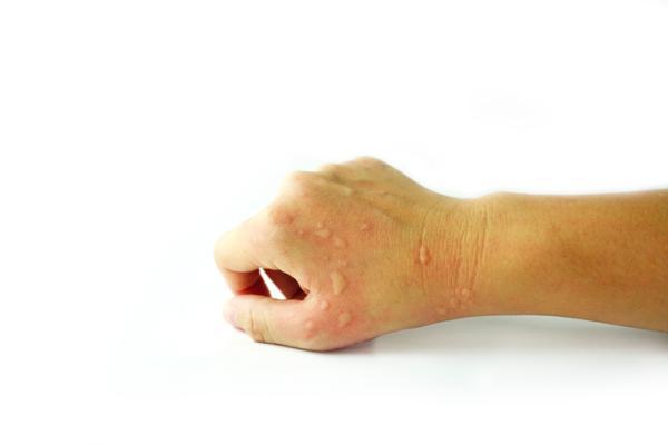 Por qué me salen ronchas en el cuerpo y luego desaparecen - Eccema o dermatitis de contacto
