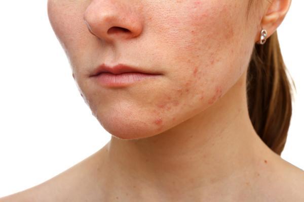 Por qué me salen ronchas en el cuerpo y luego desaparecen - Ronchas causadas por acné