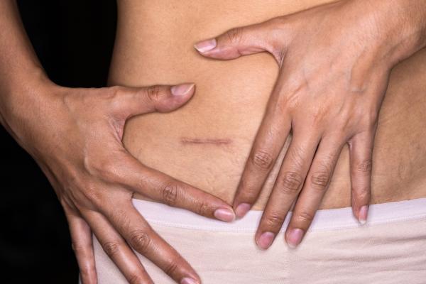 O que comer no pós-operatório de apendicite?