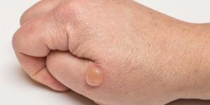 Bolhas de água na pele: causas e como curá-las