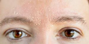 Pele do rosto ressecada: causas, tratamento e remédios caseiros