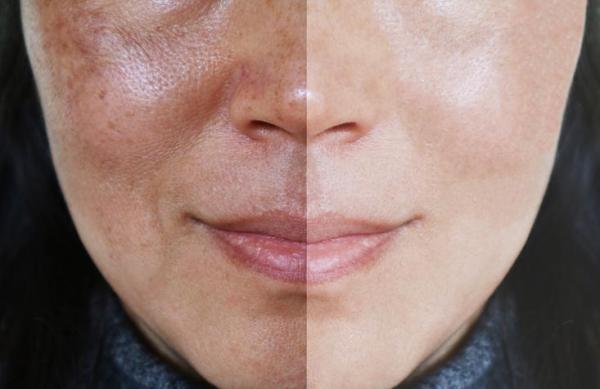 Como tirar melasma do rosto