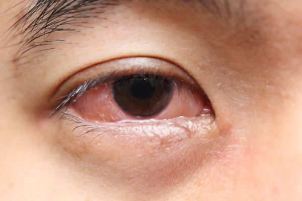 Canal lacrimal inchado e coçando, o que pode ser? - Alergias