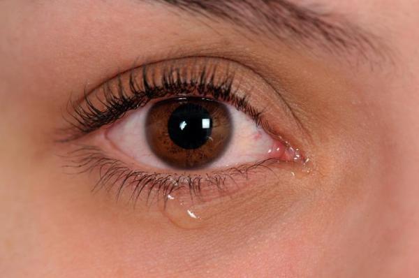 Canal lacrimal inchado e coçando, o que pode ser? - Canal lacrimal entupido