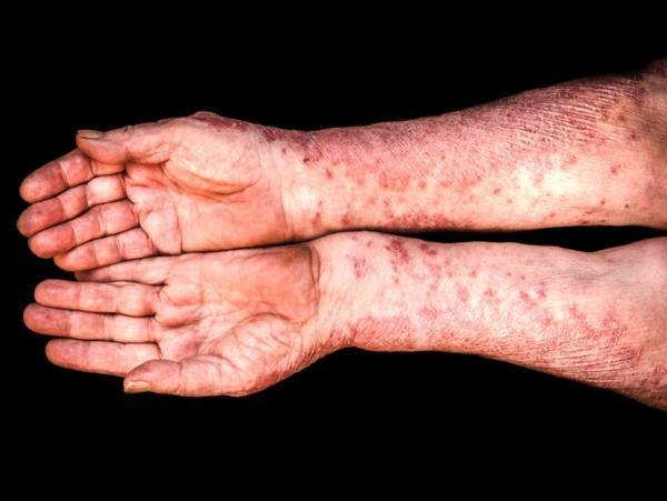 Tratamento caseiro para psoríase gutata - Psoríase gutata: sintomas