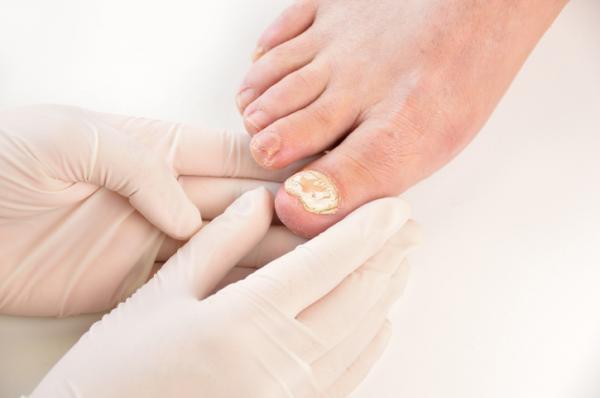 Mancha branca na unha do pé: o que pode ser