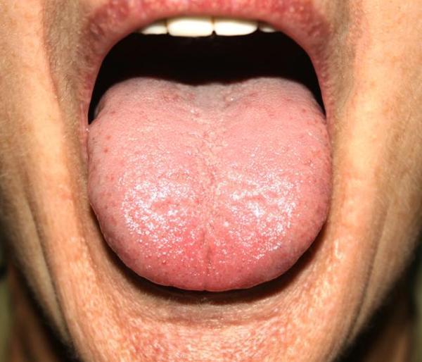 Bolinhas na língua: o que pode ser
