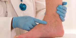 Trombofob gel: para que serve, usos e contraindicações