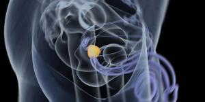 Cisto nos testículos: causas, sintomas e tratamento