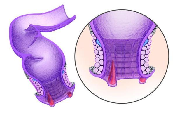 Dores ao defecar com sensação de rasgadura e ardência - Ardência no ânus ao defecar: hemorroidas