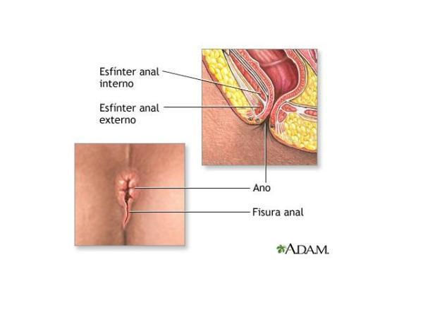 Como tratar fissura anal - soluções eficazes - Fissura anal: sintomas