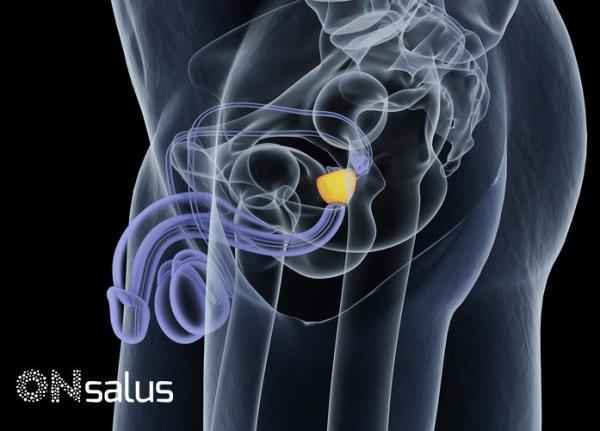 Próstata aumentada: sintomas, causas e tratamentos