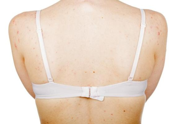 Espinhas nas costas e ombros: causas - Mudanças hormonais