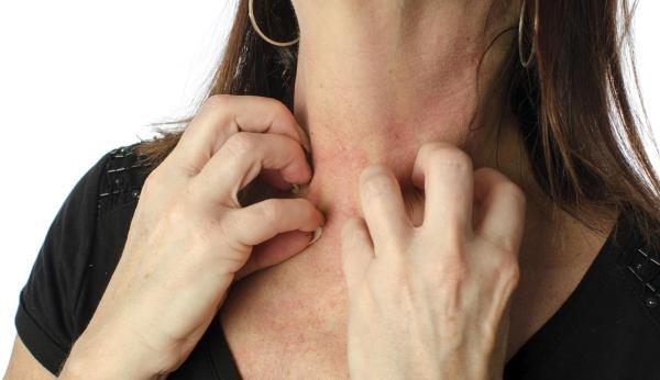 Coceira no corpo à noite: causas e soluções - Alergia nervosa