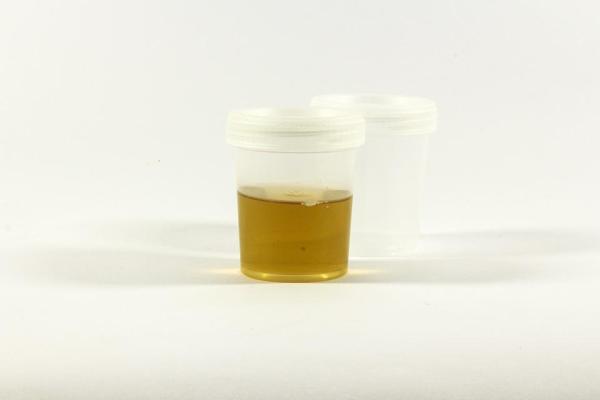 Urina com cheiro de peixe: causas e tratamento