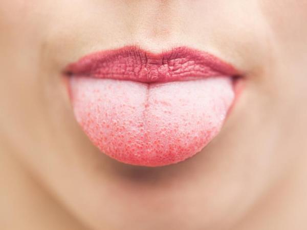 Fungos na língua: como tratar e prevenir