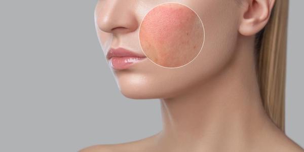 Alergia na pele do rosto, o que fazer? - Causas da alergia na pele do rosto