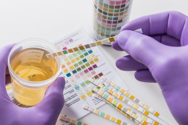 O que significa a urina com cheiro doce