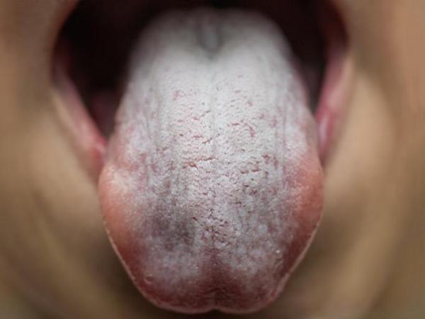 Céu da boca branco: causas e tratamento - Candidíase