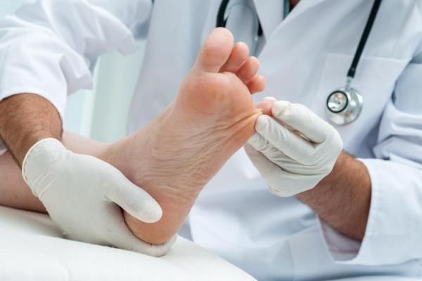 Tipos de micose nos pés - com fotos - Como tratar micose nos pés com medicamentos