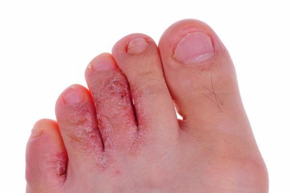 Tipos de micose nos pés - com fotos - Pé de atleta ou tínea pedis