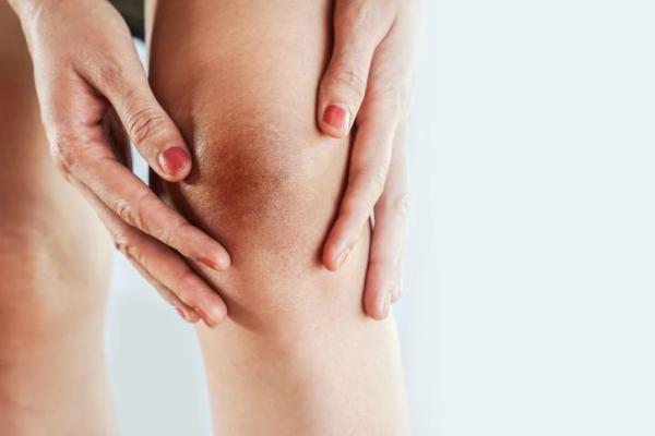 Manchas escuras na perna: causas e tratamento