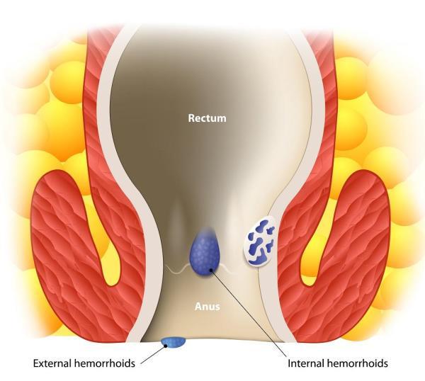 Como curar hemorróidas externas rapidamente - Hemorroida externa: sintomas