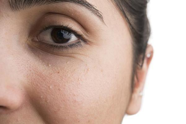 Pontos brancos no rosto: por que aparecem e como eliminá-los