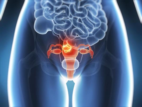 Corrimento marrom depois da menstruação: o que pode ser - Corrimento marrom após menstruação: cáncer cervical