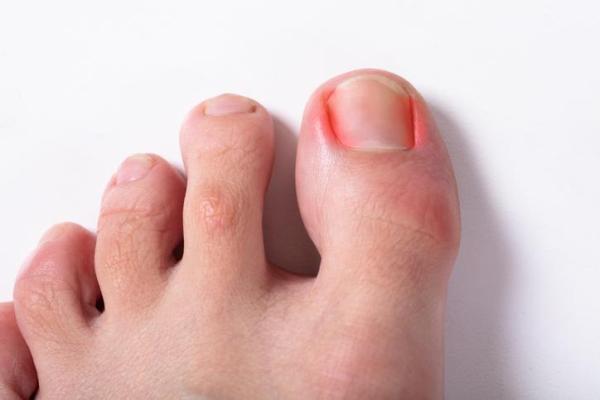 Como curar unha encravada no dedão do pé
