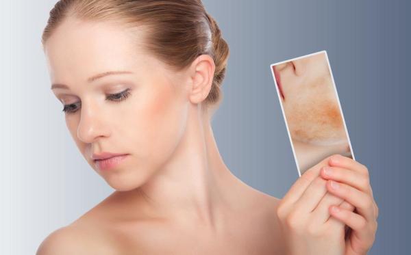 Calor no rosto: causas e tratamento - Calor no rosto, o que pode ser?