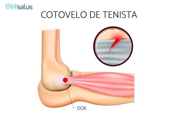 Caroço no cotovelo: causas e tratamento - Cotovelo de tenista