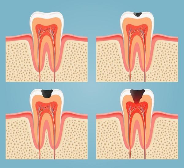 Causas de dor de dente - As cáries, principal causa de dor de dente