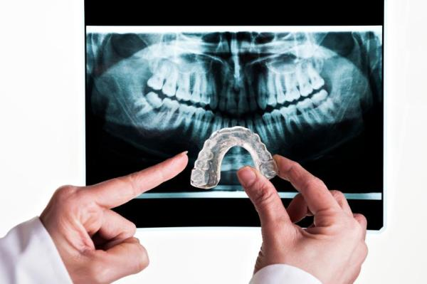 Causas de dor de dente - Bruxismo