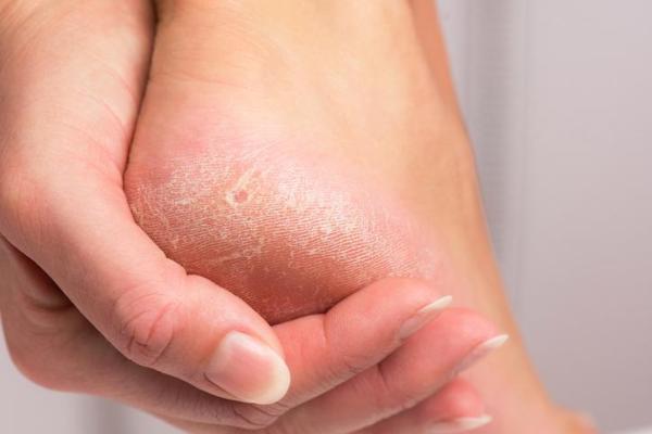 Como acabar com as rachaduras nos pés