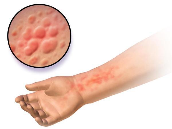 Manchas vermelhas que aparecem e somem: causas e tratamento - Manchas vermelhas que aparecem e somem: causas