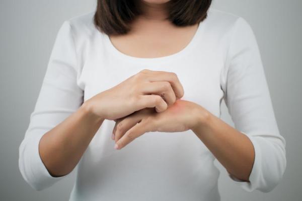 Dermatite nas mãos: causas, tratamento e remédios caseiros