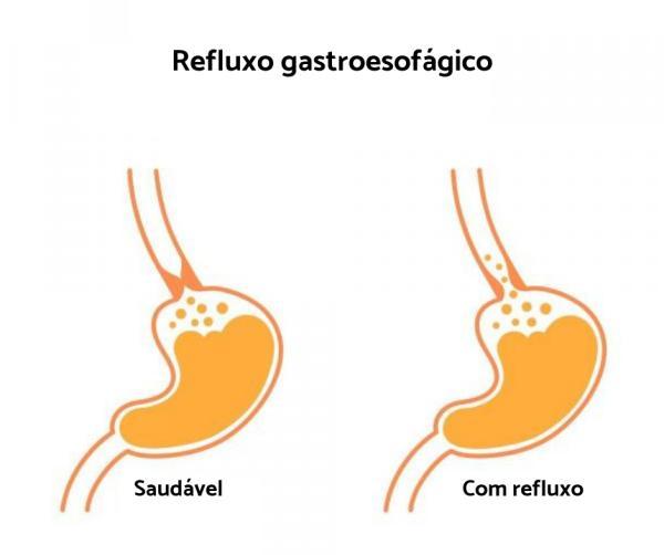 Dor no peito depois de comer: causas - Dor no peito depois de comer: refluxo gastroesofágico